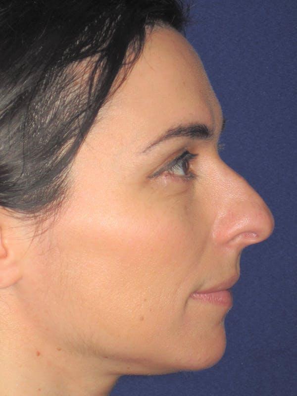 Rhinoplasty Gallery - Patient 11109917 - Image 5