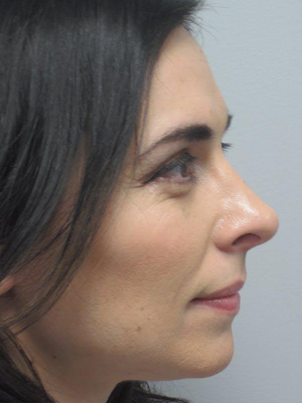 Rhinoplasty Gallery - Patient 11109917 - Image 6