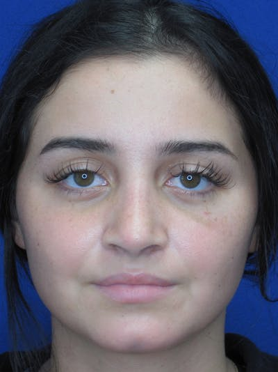 Rhinoplasty Gallery - Patient 11109918 - Image 4