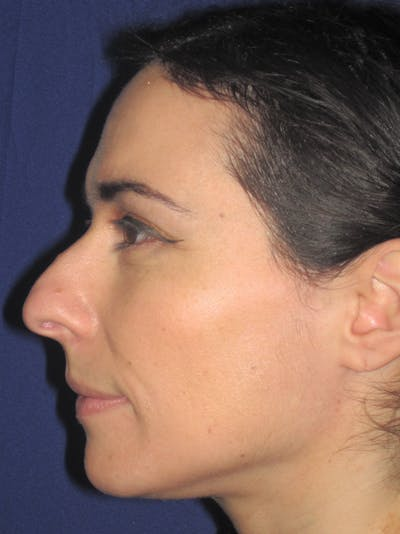 Rhinoplasty Gallery - Patient 11109917 - Image 1