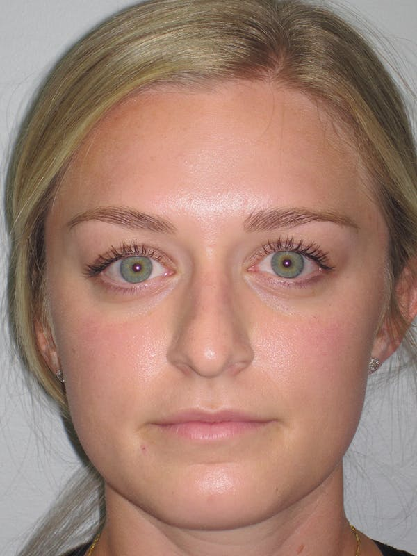Rhinoplasty Gallery - Patient 11109919 - Image 5