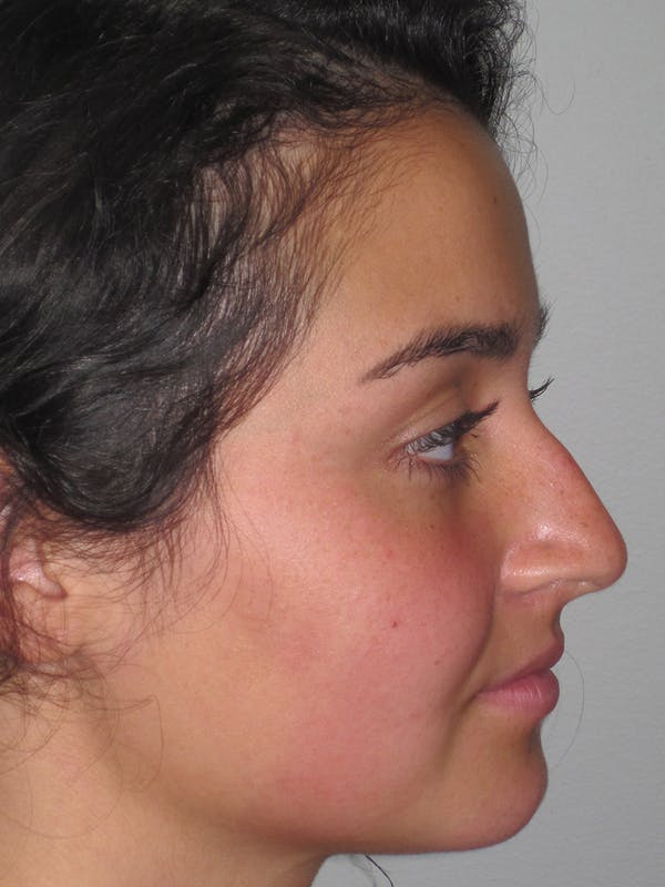 Rhinoplasty Gallery - Patient 11109918 - Image 1