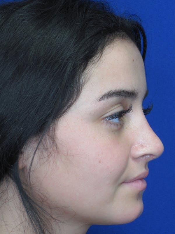 Rhinoplasty Gallery - Patient 11109918 - Image 2
