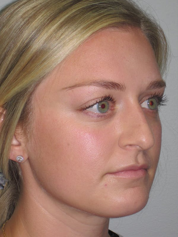 Rhinoplasty Gallery - Patient 11109919 - Image 3