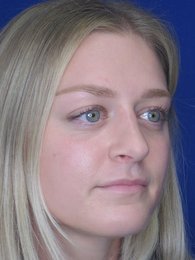 Rhinoplasty Gallery - Patient 11109919 - Image 4
