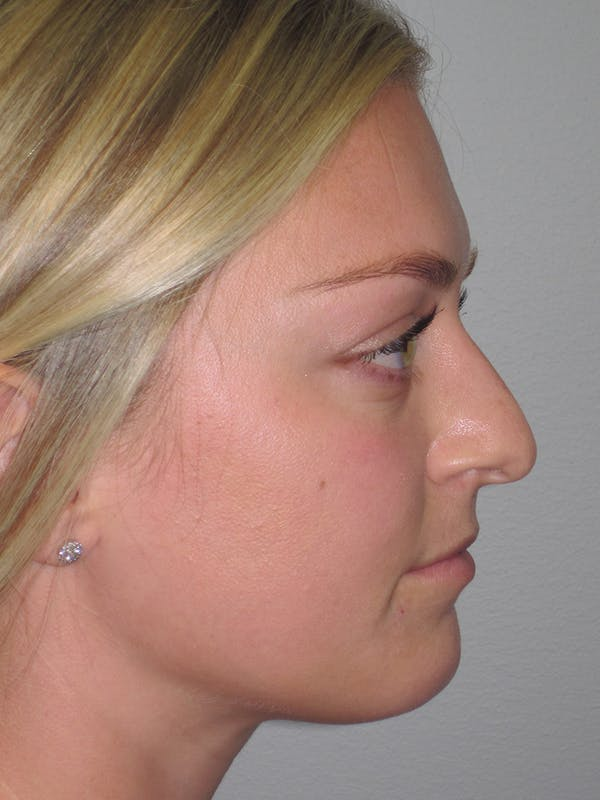 Rhinoplasty Gallery - Patient 11109919 - Image 1