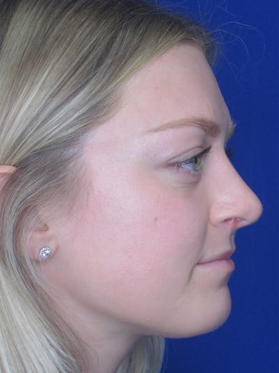 Rhinoplasty Gallery - Patient 11109919 - Image 2