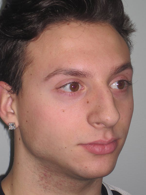 Rhinoplasty Gallery - Patient 11110017 - Image 5