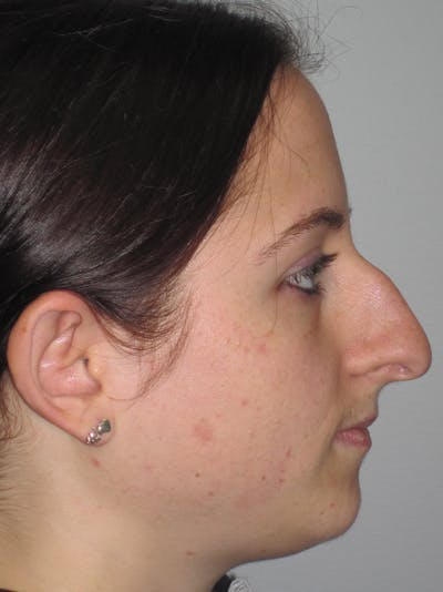 Rhinoplasty Gallery - Patient 11110016 - Image 1