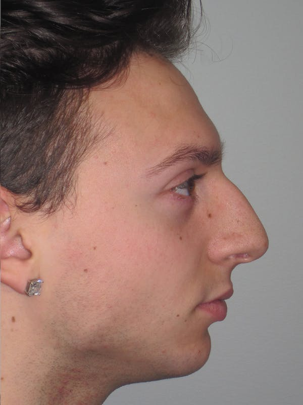 Rhinoplasty Gallery - Patient 11110017 - Image 3