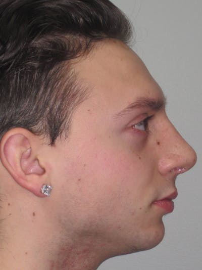 Rhinoplasty Gallery - Patient 11110017 - Image 4