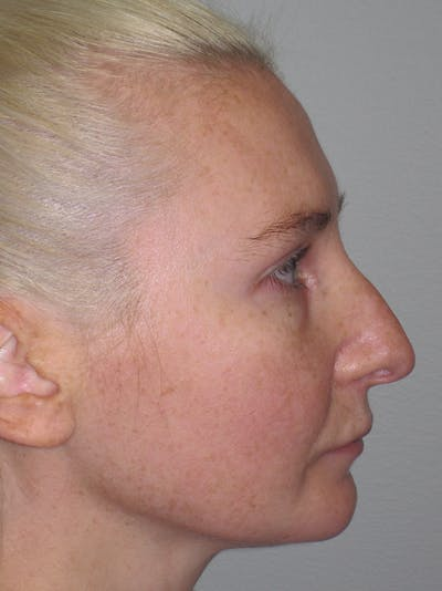 Rhinoplasty Gallery - Patient 11110018 - Image 1