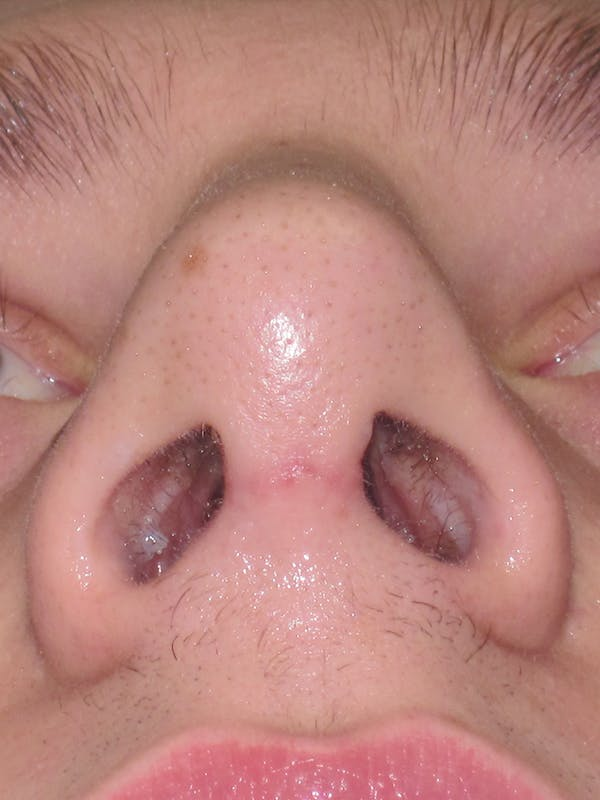Rhinoplasty Gallery - Patient 11110017 - Image 10