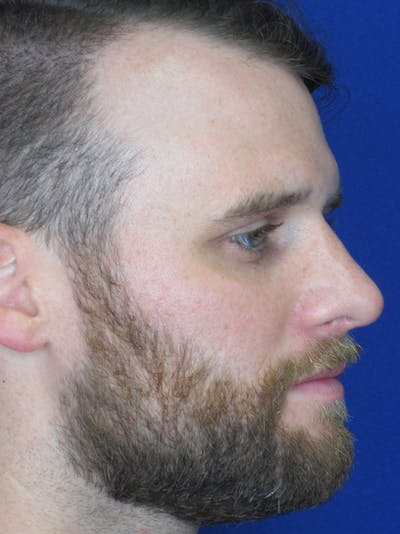 Rhinoplasty Gallery - Patient 11110019 - Image 2