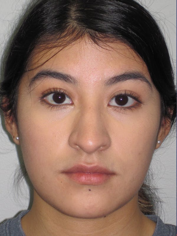 Rhinoplasty Gallery - Patient 11110021 - Image 1