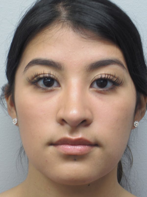 Rhinoplasty Gallery - Patient 11110021 - Image 2