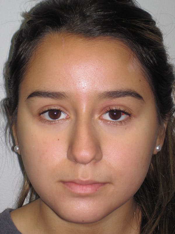 Rhinoplasty Gallery - Patient 11110022 - Image 7