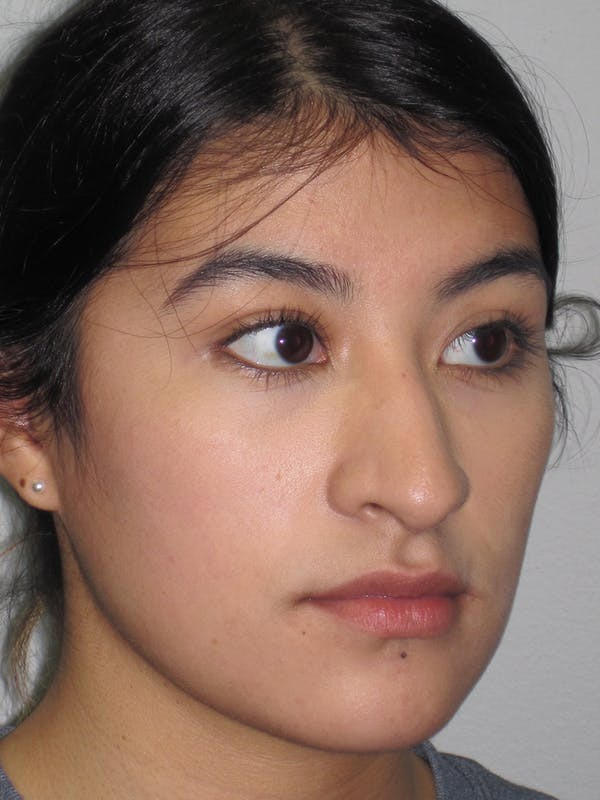 Rhinoplasty Gallery - Patient 11110021 - Image 3