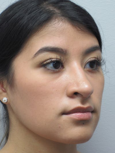 Rhinoplasty Gallery - Patient 11110021 - Image 4