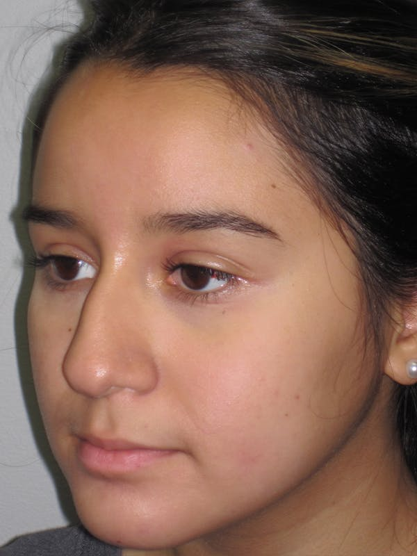Rhinoplasty Gallery - Patient 11110022 - Image 3