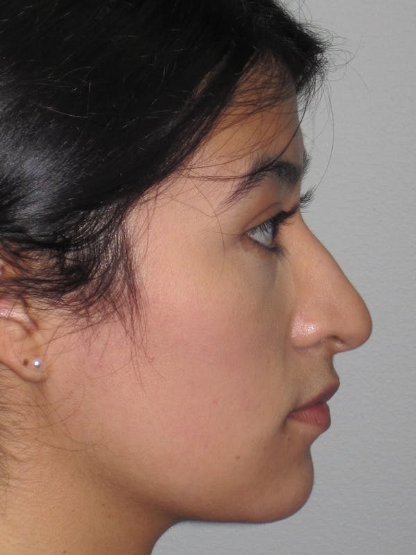 Rhinoplasty Gallery - Patient 11110021 - Image 7