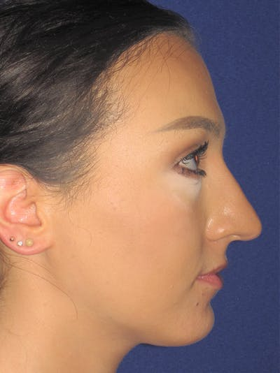Rhinoplasty Gallery - Patient 11110020 - Image 1