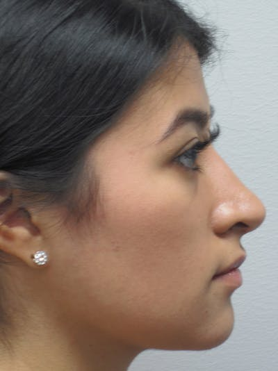 Rhinoplasty Gallery - Patient 11110021 - Image 8