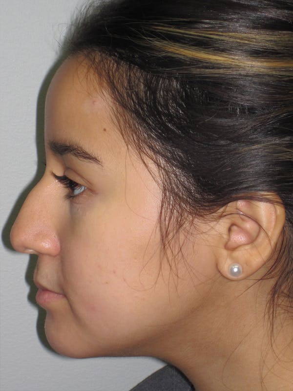 Rhinoplasty Gallery - Patient 11110022 - Image 5
