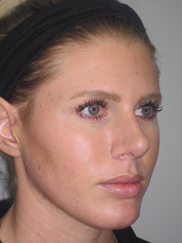 Rhinoplasty Gallery - Patient 11110023 - Image 4
