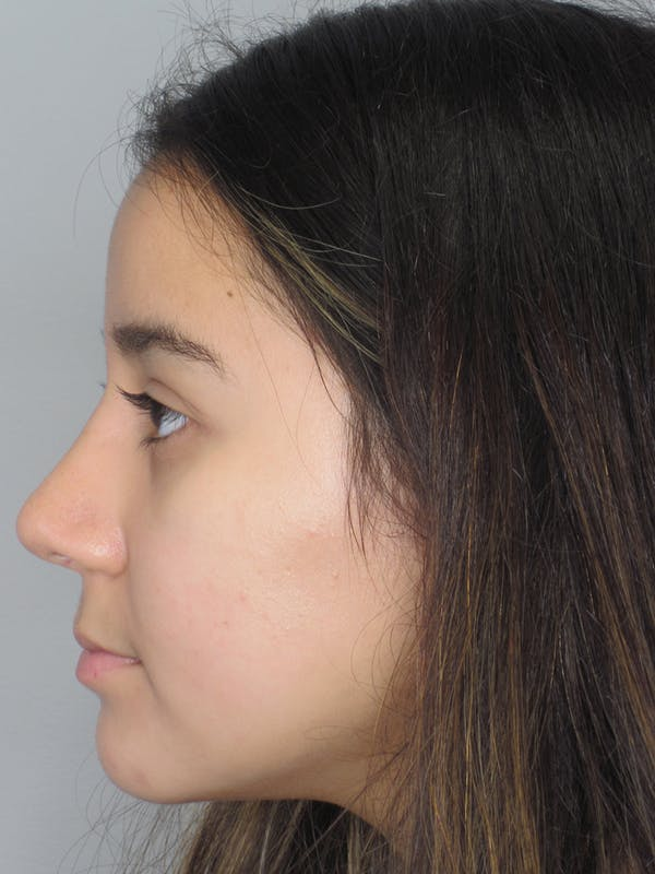 Rhinoplasty Gallery - Patient 11110022 - Image 6