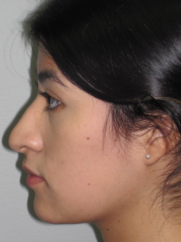 Rhinoplasty Gallery - Patient 11110021 - Image 5