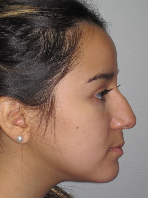 Rhinoplasty Gallery - Patient 11110022 - Image 1