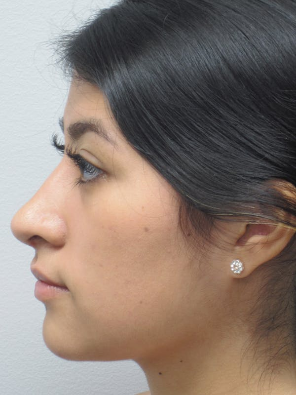 Rhinoplasty Gallery - Patient 11110021 - Image 6