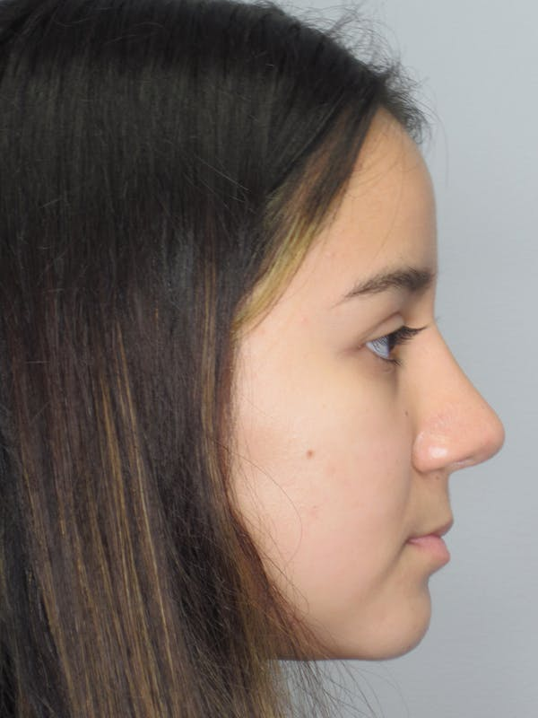 Rhinoplasty Gallery - Patient 11110022 - Image 2