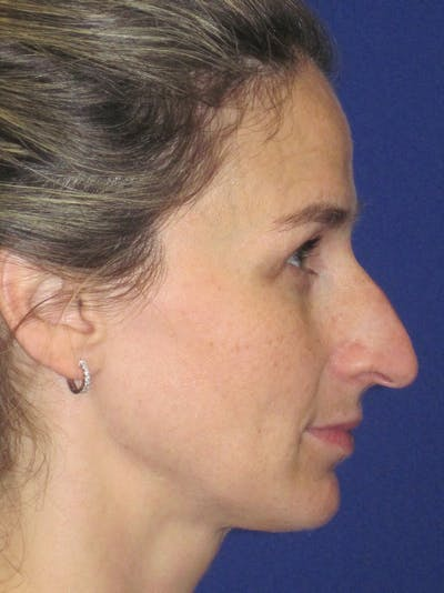 Rhinoplasty Gallery - Patient 11110025 - Image 1