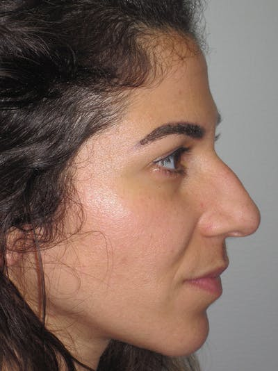 Rhinoplasty Gallery - Patient 11110053 - Image 1