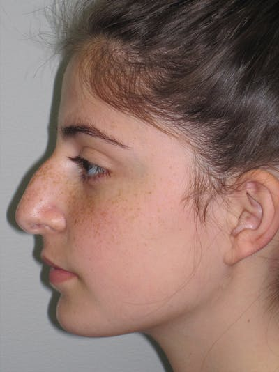 Rhinoplasty Gallery - Patient 11110054 - Image 1