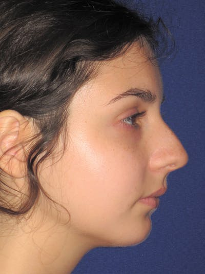 Rhinoplasty Gallery - Patient 11110055 - Image 1