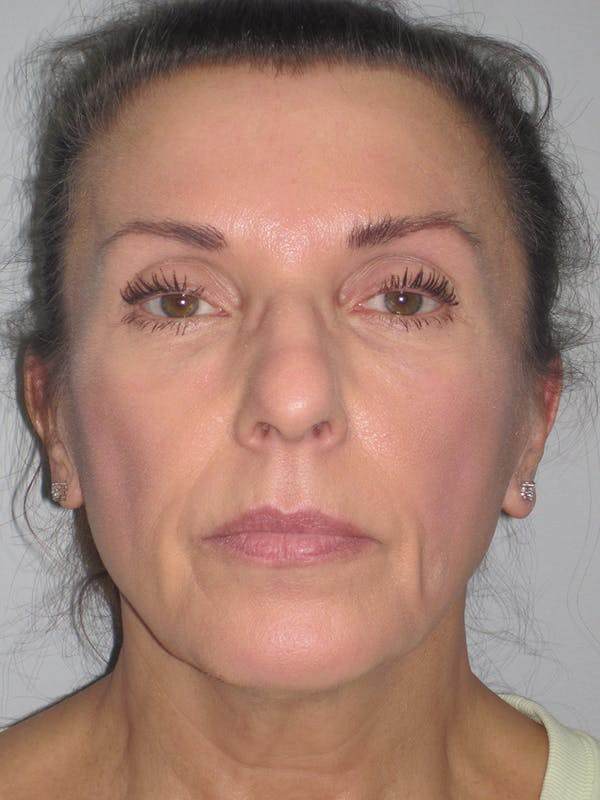 Facelift/Mini-Facelift Gallery - Patient 11110072 - Image 5
