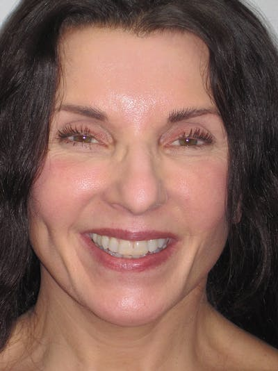 Facelift/Mini-Facelift Gallery - Patient 11110072 - Image 6