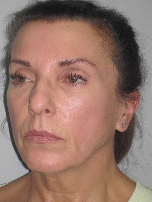 Facelift/Mini-Facelift Gallery - Patient 11110072 - Image 3