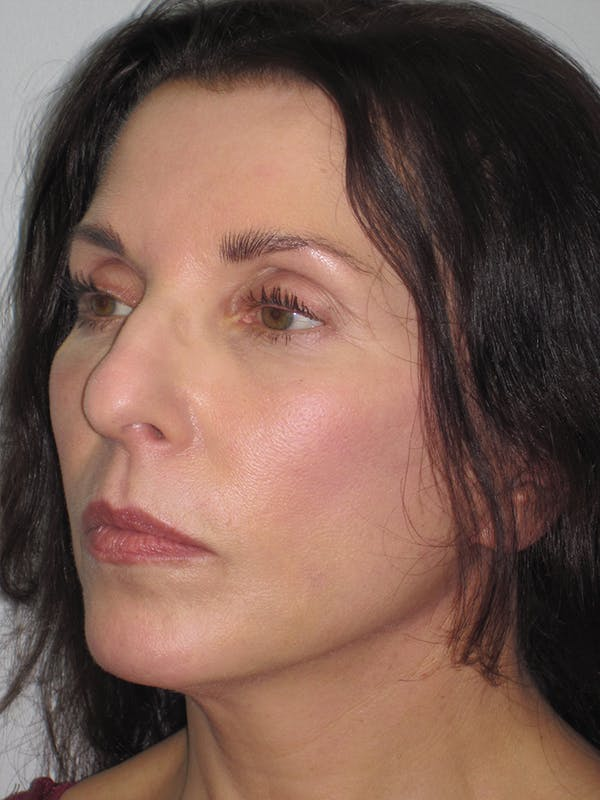 Facelift/Mini-Facelift Gallery - Patient 11110072 - Image 4