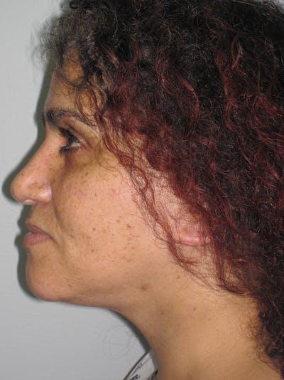 Facelift/Mini-Facelift Gallery - Patient 11110071 - Image 6