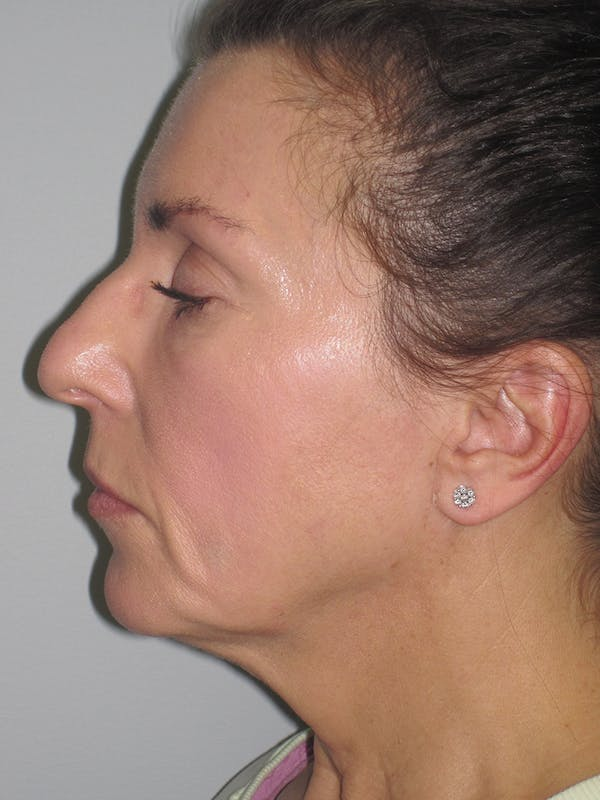 Facelift/Mini-Facelift Gallery - Patient 11110072 - Image 7