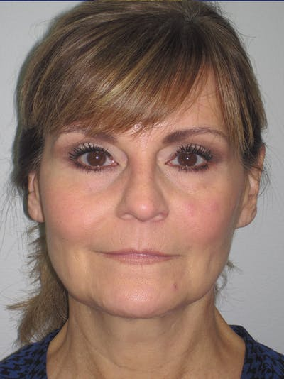 Facelift/Mini-Facelift Gallery - Patient 11110073 - Image 1
