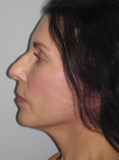 Facelift/Mini-Facelift Gallery - Patient 11110072 - Image 8