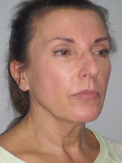 Facelift/Mini-Facelift Gallery - Patient 11110072 - Image 1