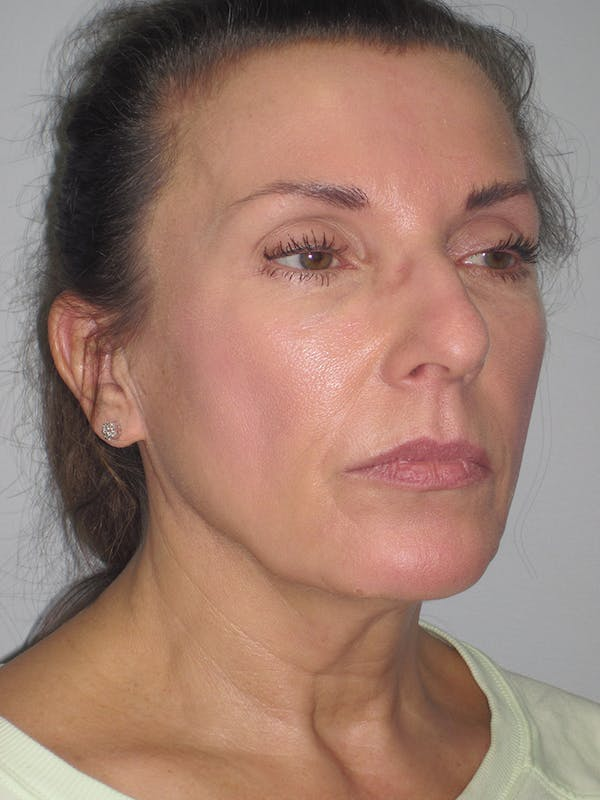 Facelift/Mini-Facelift Gallery - Patient 11110072 - Image 1