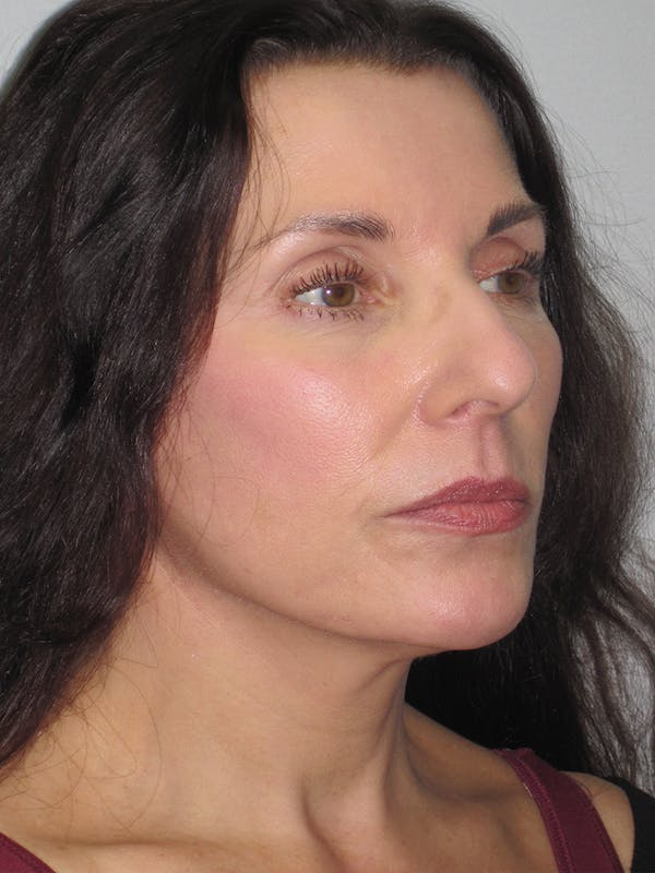 Facelift/Mini-Facelift Gallery - Patient 11110072 - Image 2