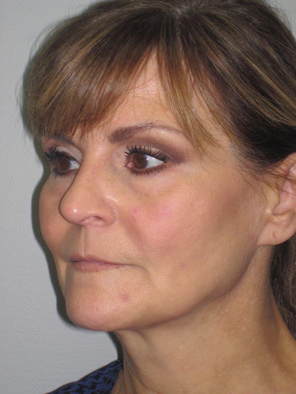 Facelift/Mini-Facelift Gallery - Patient 11110073 - Image 3